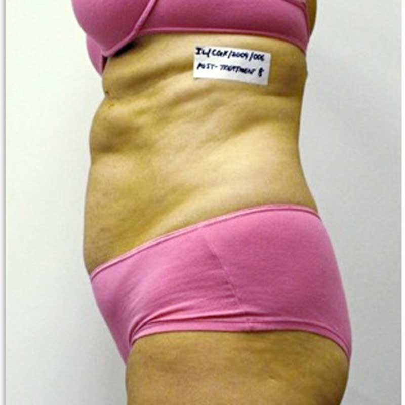 Body shaping Case 1A I-Lipo Xcell - Image after 8 treatments