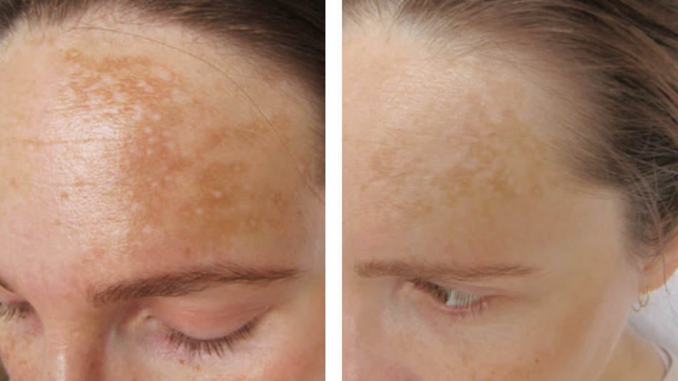 advanced treatments for pigmentation and freckles